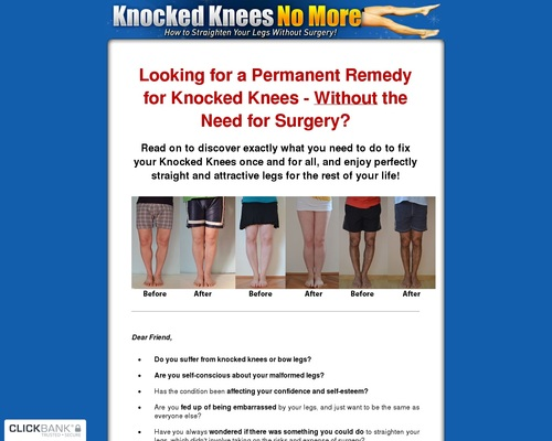 Knocked Knees No More - How to Straighten Your Legs Without Surgery!